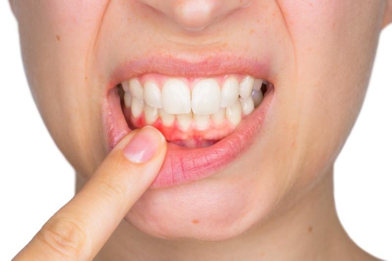 Gum Grafts Help Maintain Good Oral Health