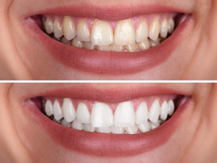 Teeth Whitening: Simple, Safe and Effective