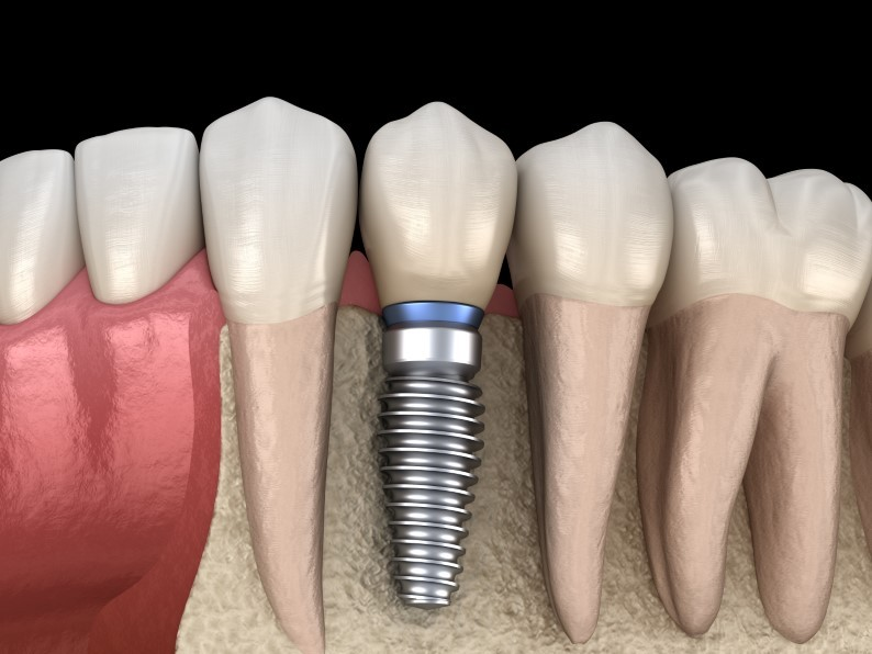 Dental implants Can Help Improve Your Quality of Life