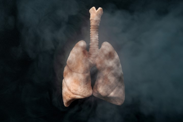 Ways to Lower your Risk for Lung Cancer