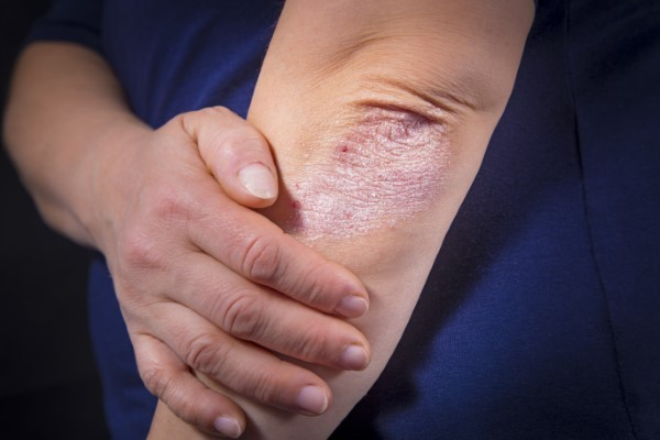 Managing the Painful Effects of Psoriasis