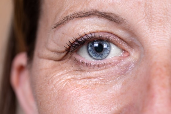 Your Eye-Area Aging Problems Solved