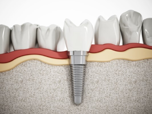 Dental implants: For a Smile that's Attractive and Functional