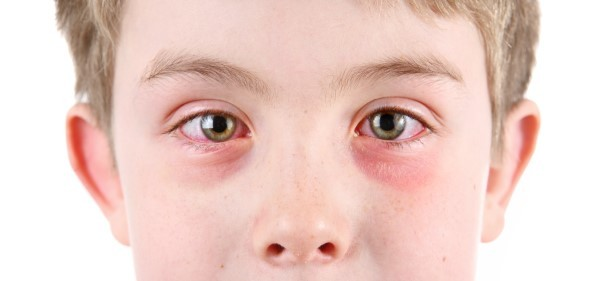 Conjunctivitis and Pink Eye
