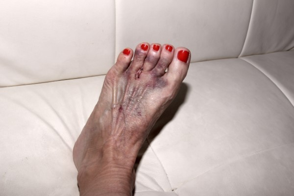 Wearing High Heels Can be Bad for Your Feet