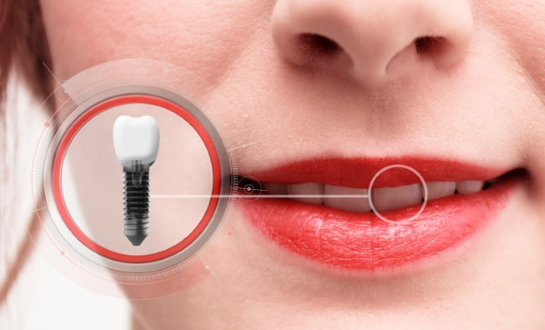 Dental Implants Help Restore Confidence in Your Smile