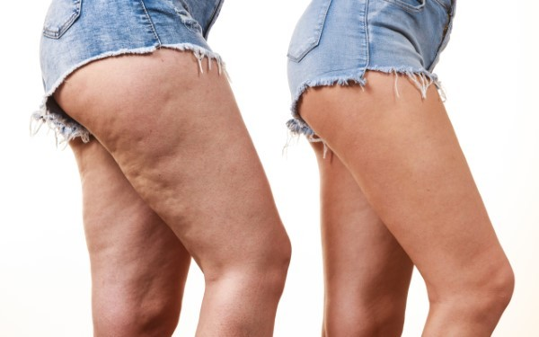 Say Goodbye to Unsightly Cellulite!
