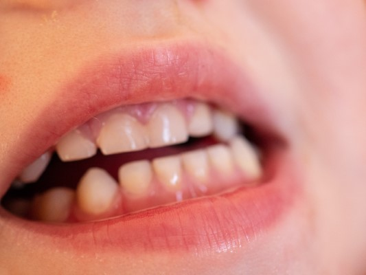 How Teeth Grinding Can Affect your Child's Health
