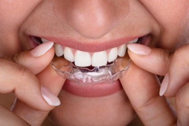 Seeing Tangible Results with the Invisible: Clear Aligners