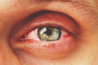 What is Retinal Vein Occlusion (RVO)?