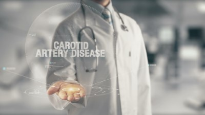 Carotid Artery Disease: what it is and how it can be prevented