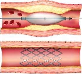 Vascular Stents Help Keep Blood Flowing
