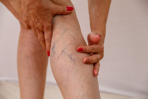 Getting Rid of Varicose Veins is just a Shot Away