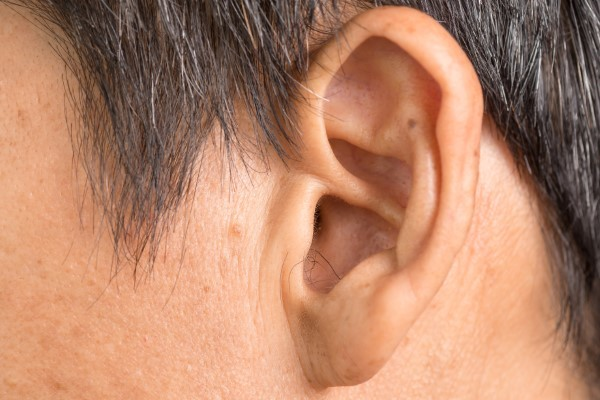 A Simple Fix for Protruding Ears