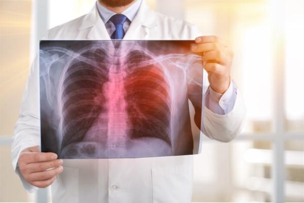 Understanding the Link Between Pneumonia and COVID