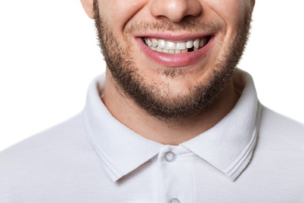 Missing Teeth? Dental Implants Offer a Beautiful Fix