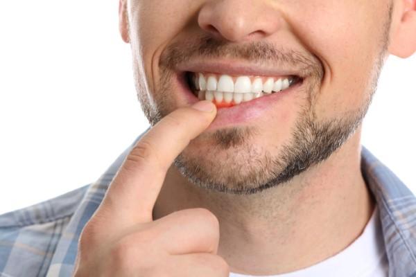 Periodontists Help Ensure Gum Health