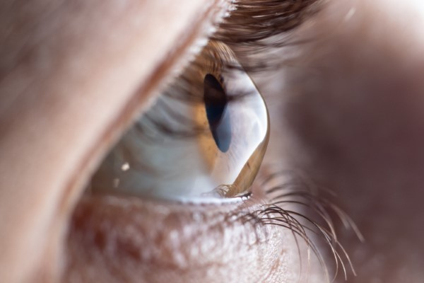 Seek Immediate Medical Help For A Corneal Abrasion