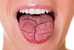 Dry mouth: How to keep your oral health flowing