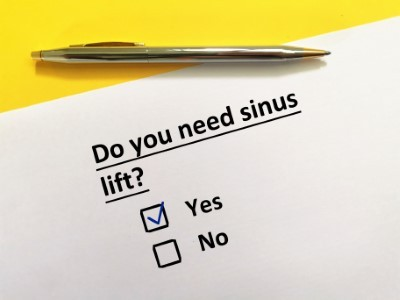 Oral Surgery: Why do I Need a Sinus lift Before Receiving Dental Implants?