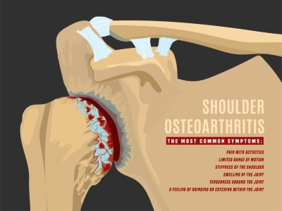 How Common is Shoulder Replacement Surgery?