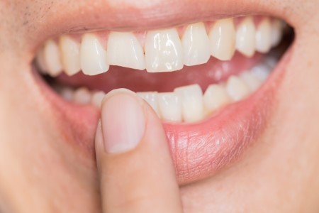 Time is of the Essence When it Comes to Saving a Cracked Tooth