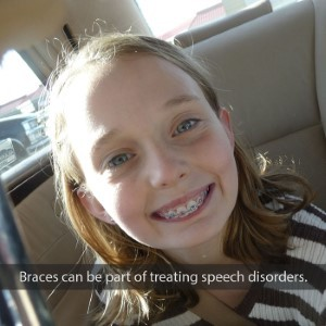 Orthodontic Treatment and Speech Problems