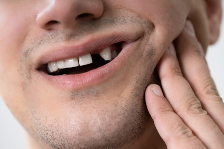 Missing Teeth? Prosthodontists Restore Your Smile and Health