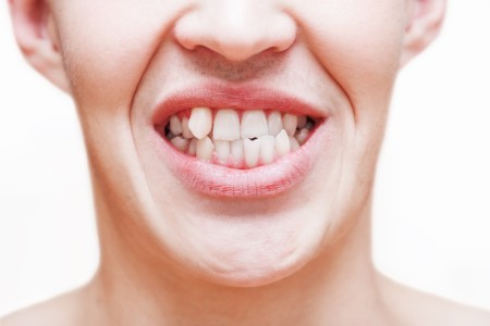 Crooked Teeth are More Than Just Unattractive