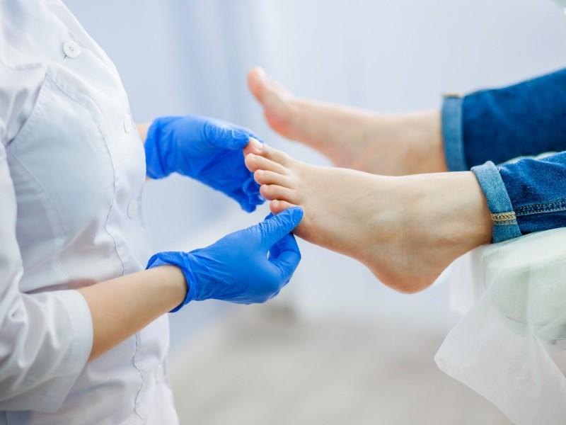 Treatment for Painful Hammertoe