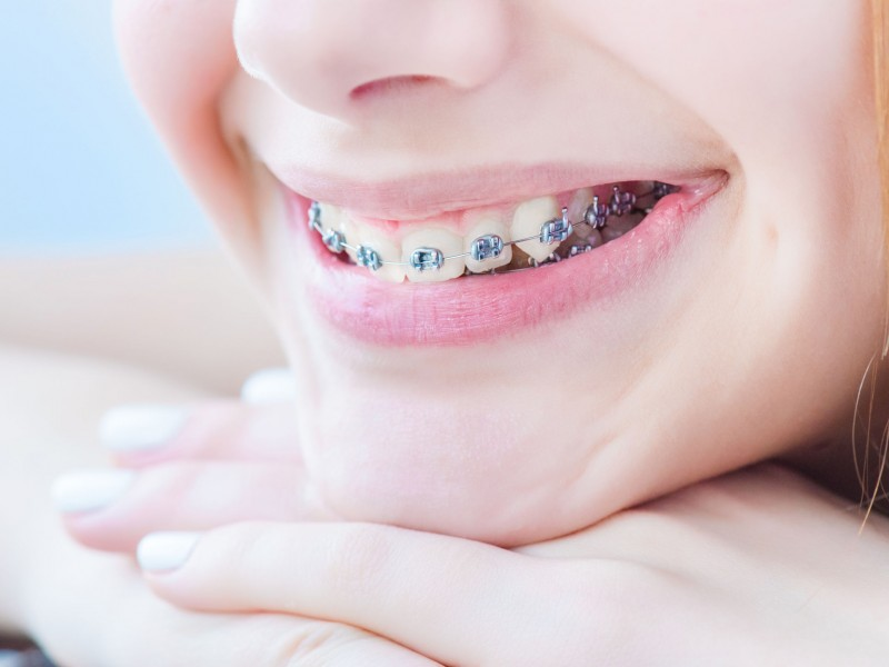 Food Dos and Don'ts While Wearing Braces