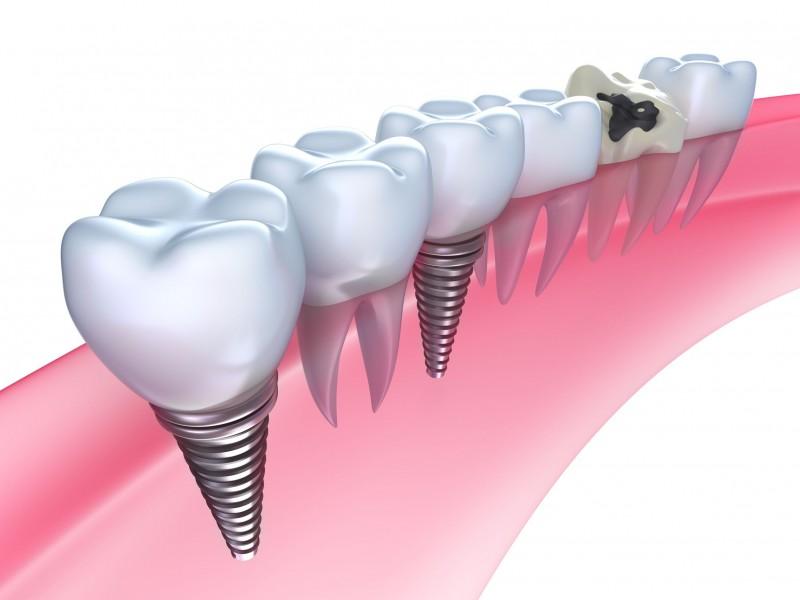 Mount Laurel Implants