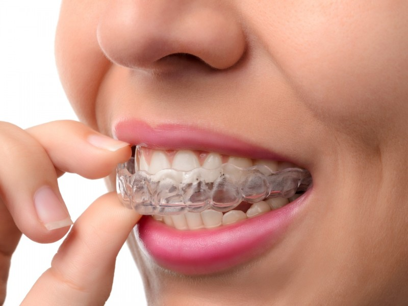 Invisalign: The Orthodontic Solution for Busy Moms