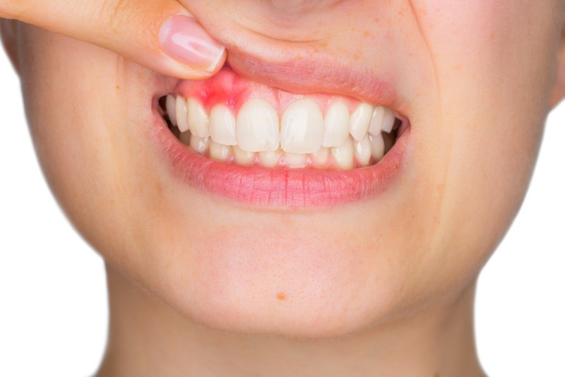 Healthy Gums and a Beautiful Smile